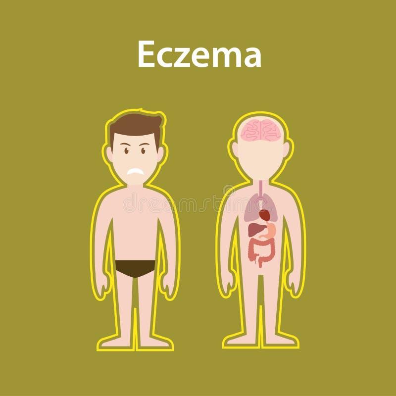 与人体充分的立场的湿疹病态的例证和器官保护签字 库存例证