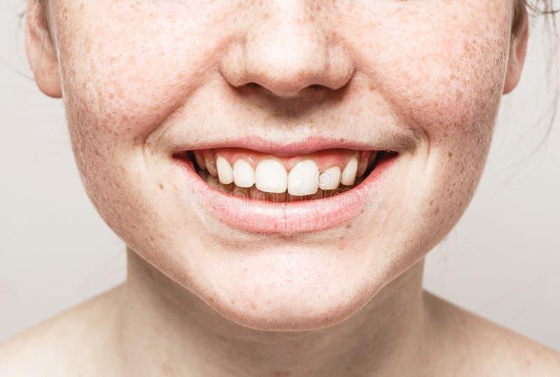 与健康皮肤的牙微笑嘴年轻美丽的雀斑妇女面孔画象 免版税库存图片