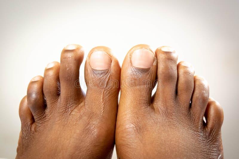 与光滑皮肤的美好的黑女性平的脚 非裔美国人的妇女健康脚婴孩 在丝毫婴孩的赤裸隔绝的脚 图库摄影