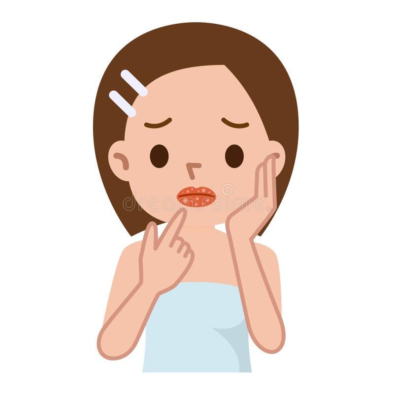 与冷的疱疹的嘴唇特写镜头,疼痛在嘴唇 向量例证