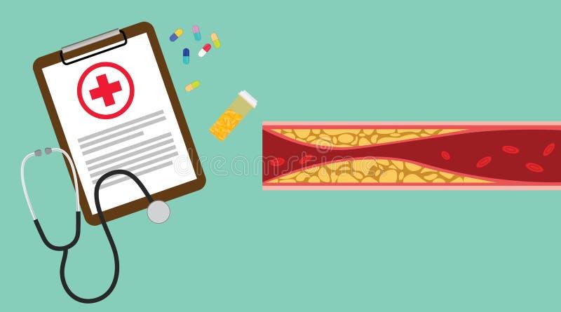 与剪贴板医疗保健详细信息的胆固醇人的憔悴管理不善医疗健康管理与药片和医学- 库存例证