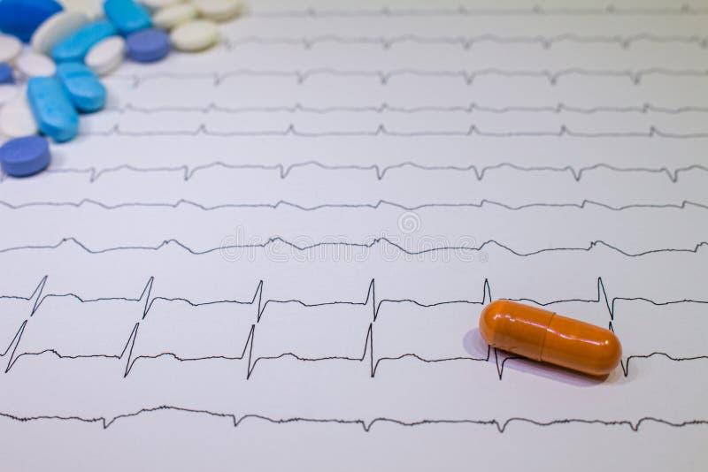 与布鲁格达综合症状的心电图 在EKG道路的色的药片 突然的心脏病死亡由于心率失常 免版税库存照片