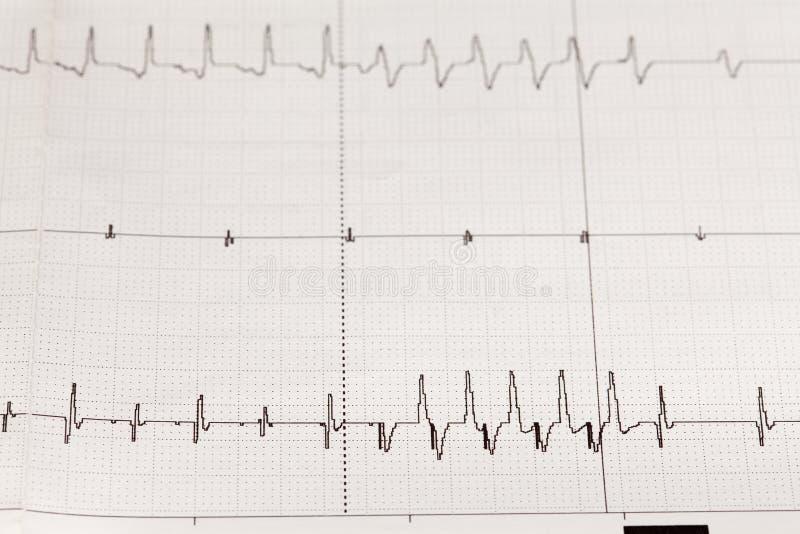 与心律失常的心电图ECG/EKG 免版税库存图片