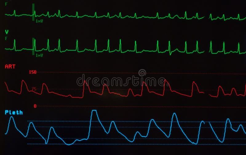 与心房颤动的显示器 免版税库存图片