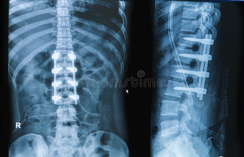 与植入管融合的背部疼痛展示脊柱的X-射线图象 免版税图库摄影