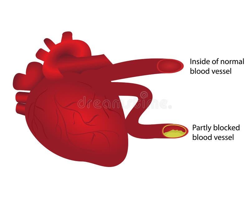 与法线和部分封锁的血管的心脏 向量例证
