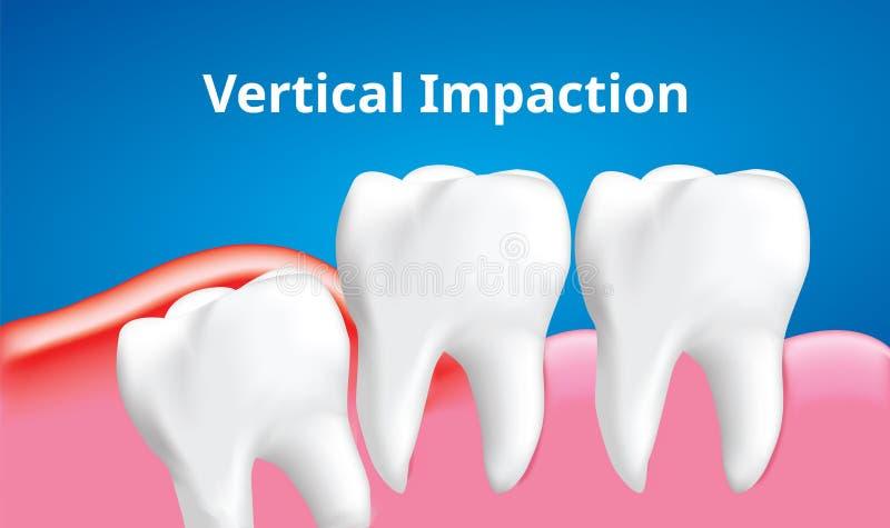 与炎症影响,牙齿保护概念,现实传染媒介的智齿垂直的装紧 皇族释放例证