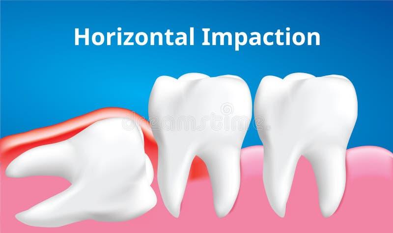 与炎症影响,牙齿保护概念,现实传染媒介的智齿水平的装紧 库存例证