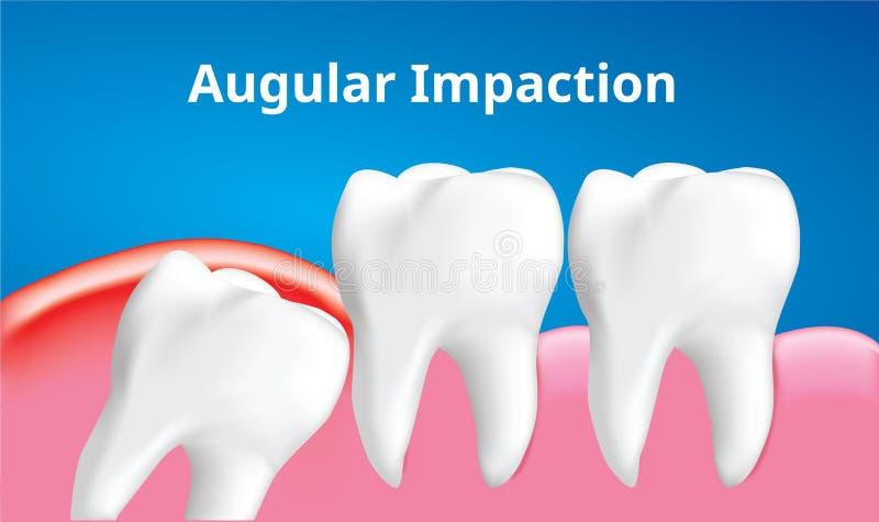 与炎症影响,牙齿概念,现实传染媒介的智齿有角或中央装紧 库存例证