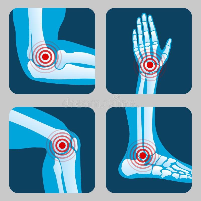 与痛苦圆环的人的联接 infographic的关节炎和的风湿病 医疗app传染媒介按钮 向量例证