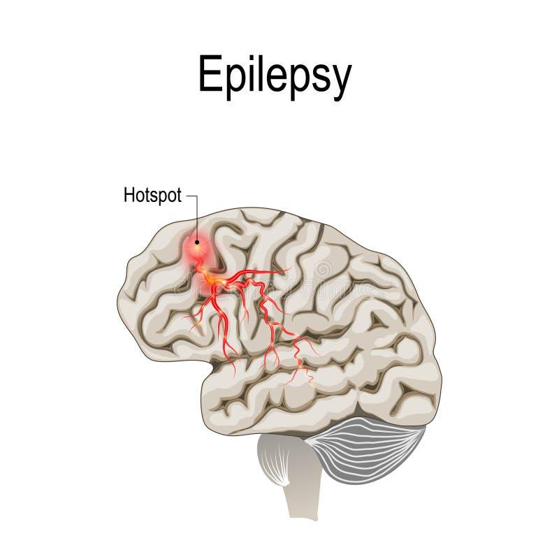 与癫痫症热点热点的人脑  库存例证
