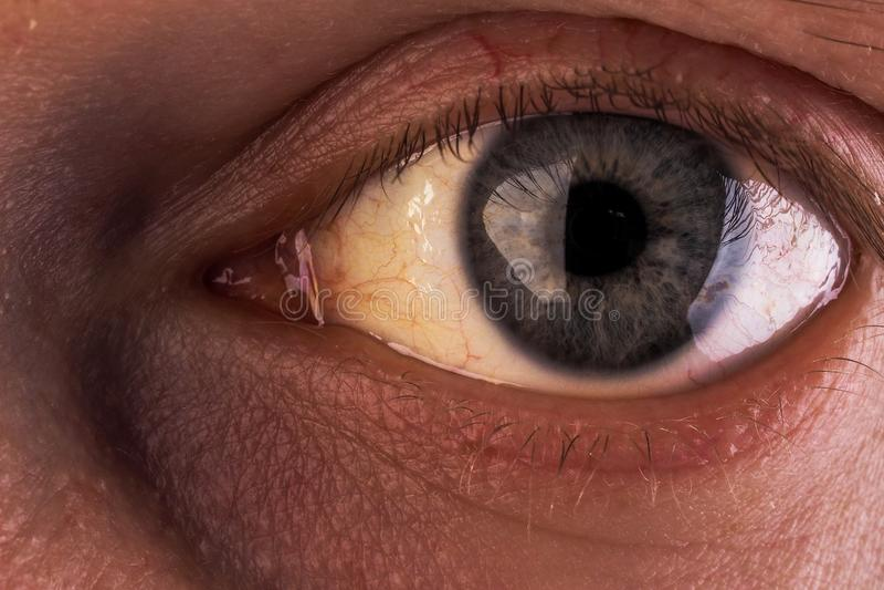 与眼睛的严厉淡黄色色变的阻碍黄疸 免版税图库摄影