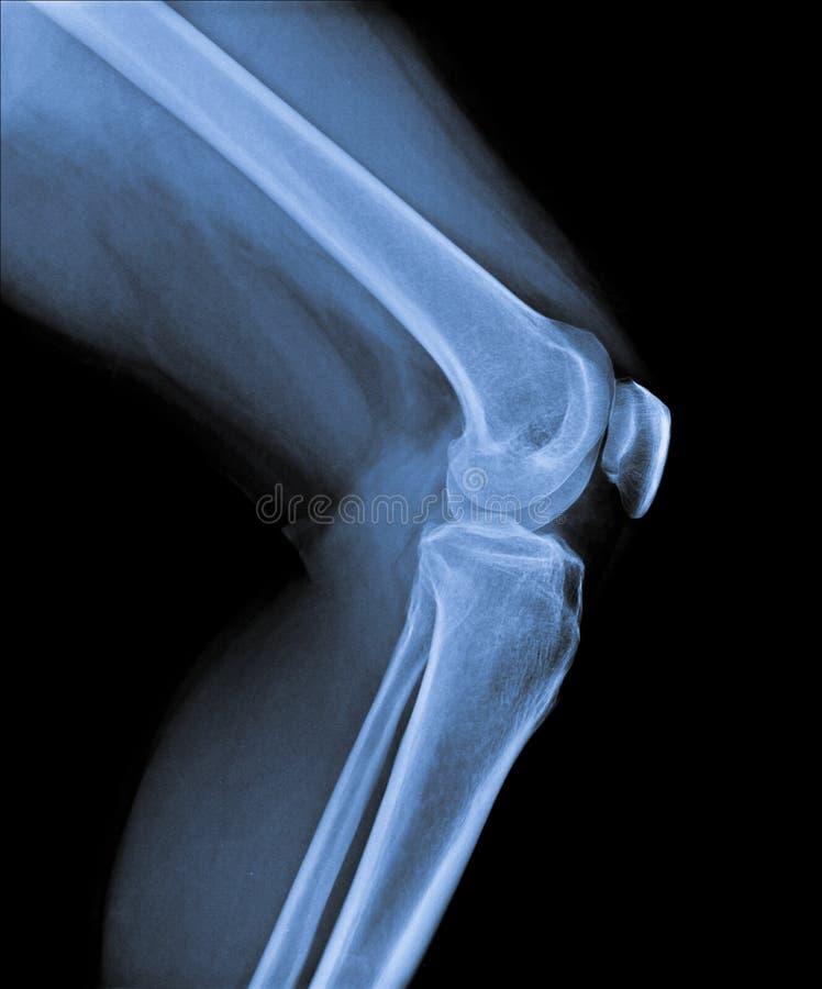 与股骨和胫骨的膝盖关节 库存照片