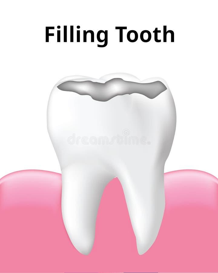 与胶的牙装填,隔绝在白色背景 向量例证