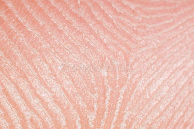 与脂肪分泌物的特写镜头皮肤在人的腿,宏指令 免版税库存照片