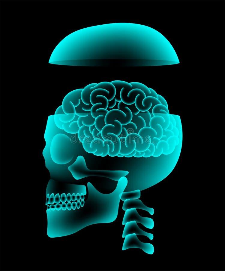 与脑子构思设计,侧视图例证的头骨开放X-射线 皇族释放例证