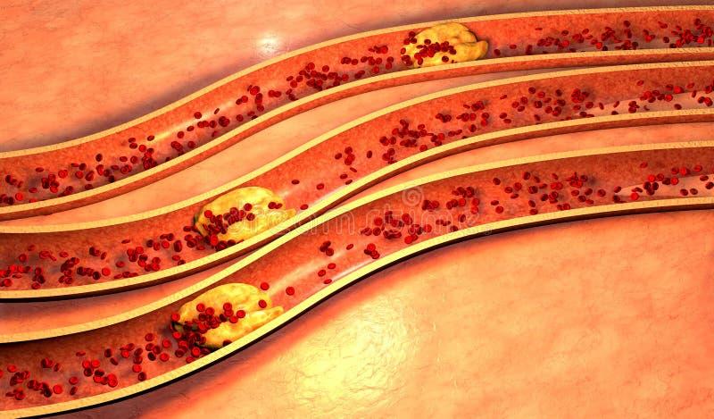 与血小板和胆固醇匾的阻塞的动脉 库存例证
