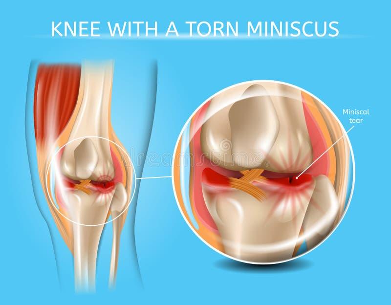 与被撕毁的半月板传染媒介图的受伤的膝盖关节 皇族释放例证