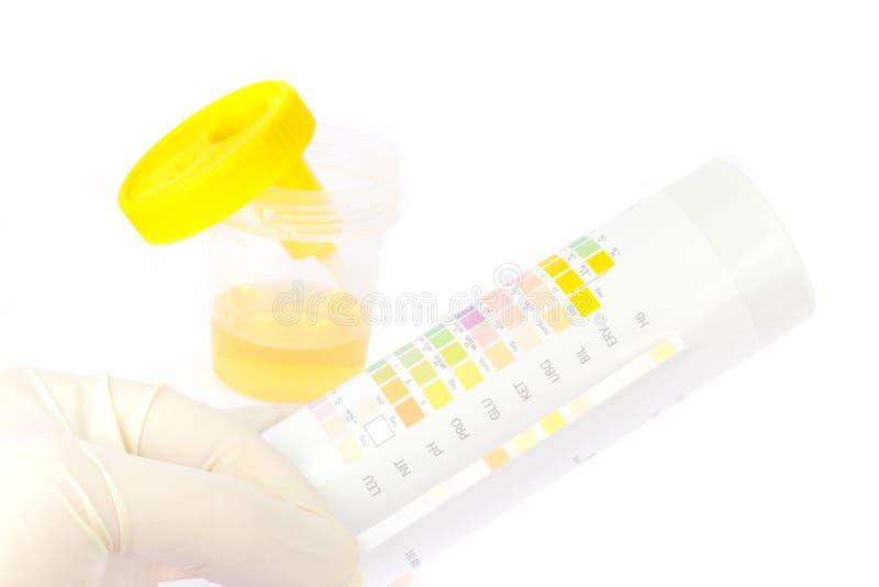与试验片的尿样 图库摄影