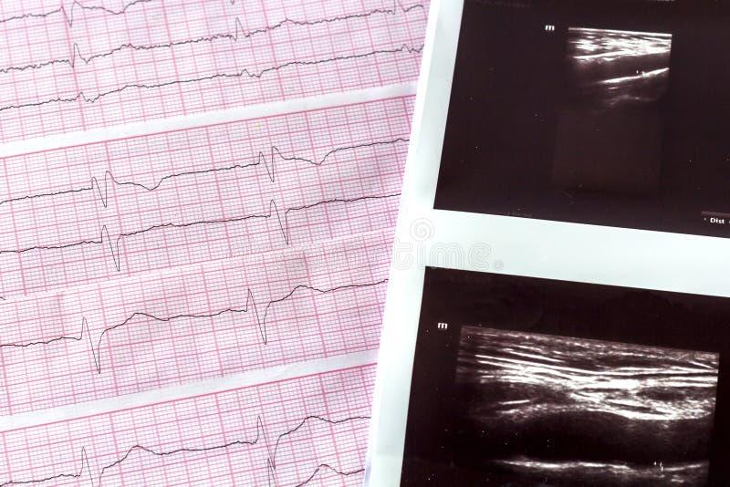 与超声波紧密大脑船想象或超生波检查法的心电图  图库摄影