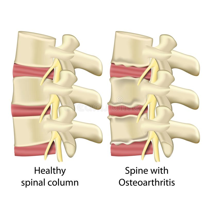 与骨关节炎,在白色背景隔绝的脊柱医疗传染媒介例证的脊椎 向量例证