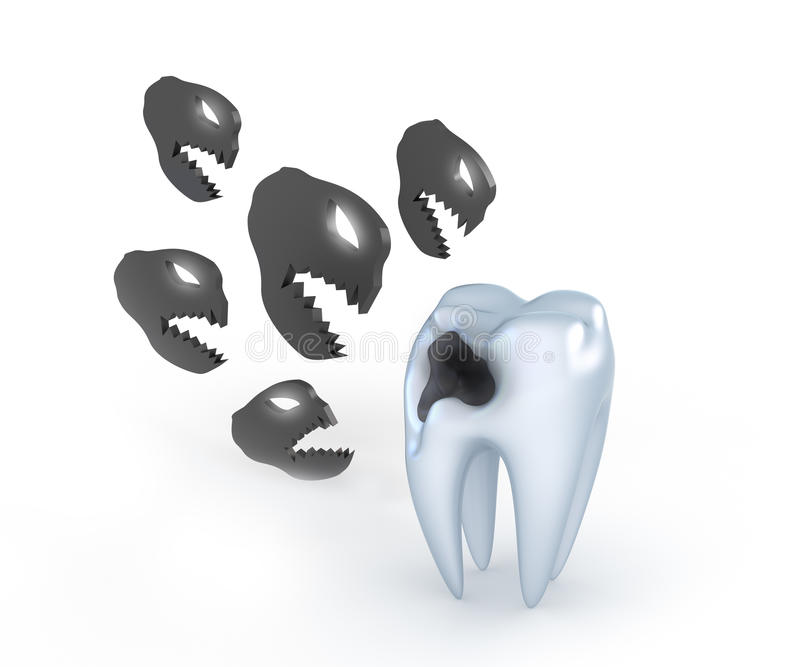 与龋的牙 库存例证