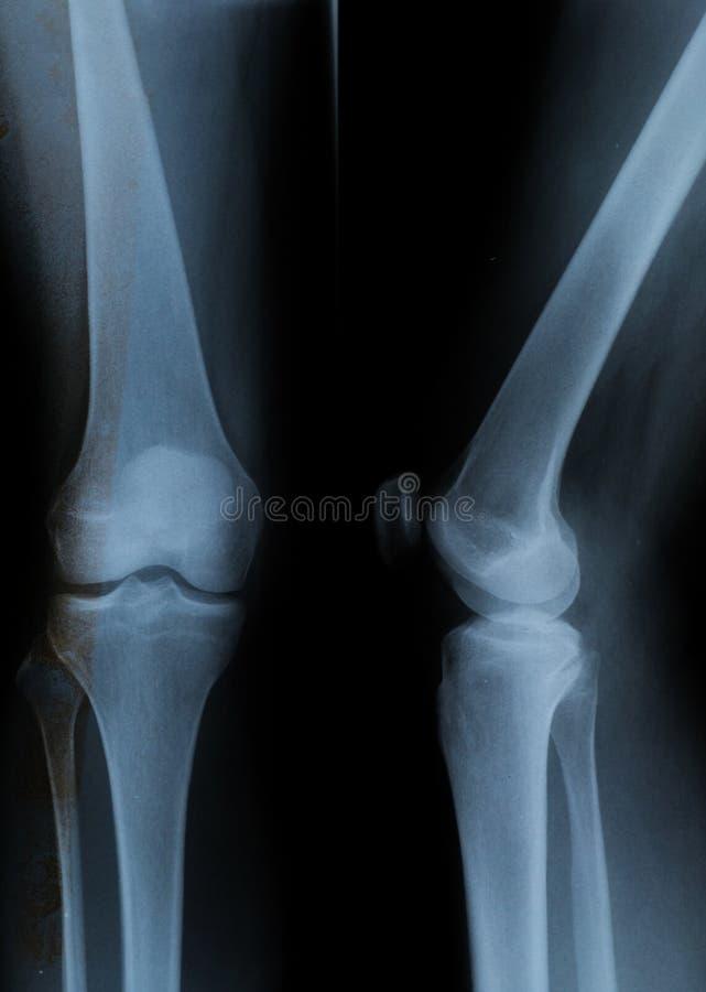 与4根可看见的骨头的膝盖X-射线 免版税库存照片