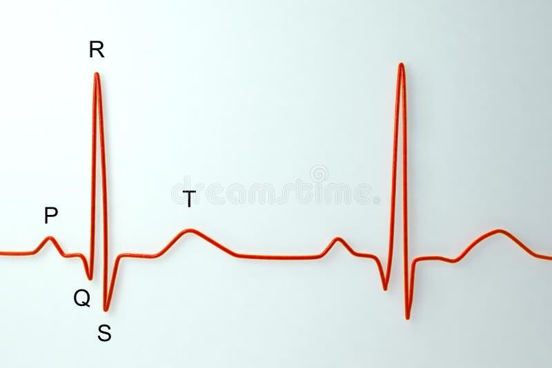 与labeles的心电图在轻的背景