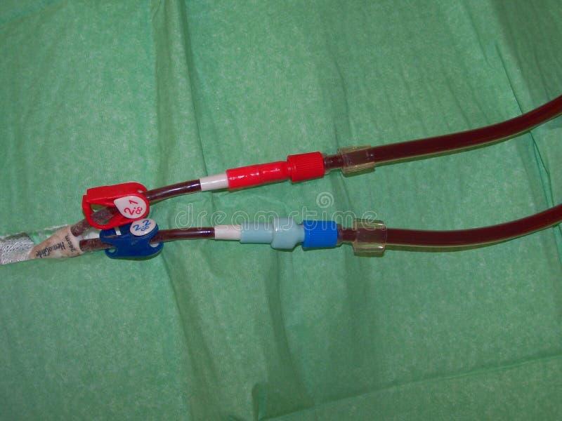 中央多血脉性的透析导尿管特写镜头 库存图片