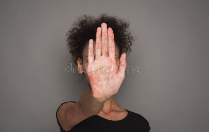 中止麻疹病毒 有红色斑点的非洲妇女在棕榈 库存照片