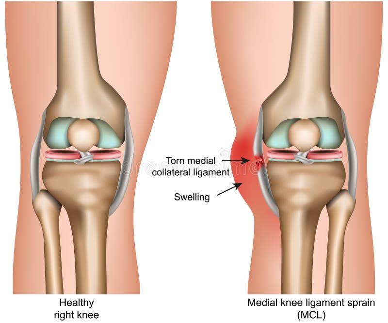 中间在白色背景隔绝的膝盖韧带扭伤医疗传染媒介例证infographic 皇族释放例证