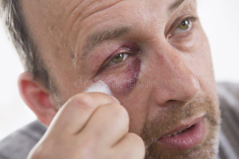 中年白种人男性情感画象以真正的挫伤 库存照片