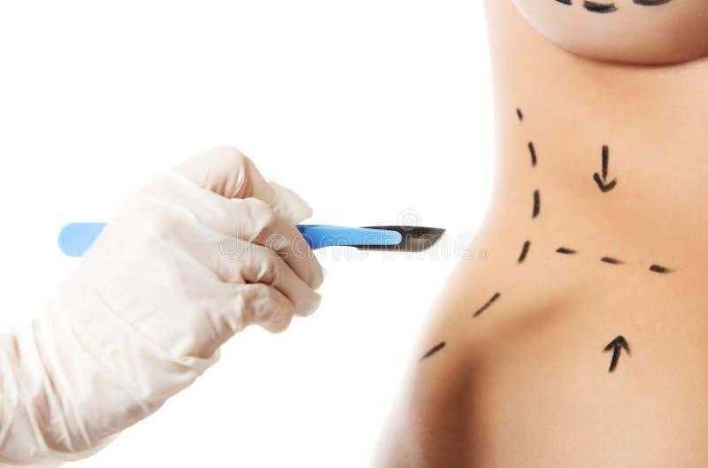 为整容外科标记的妇女身体 免版税图库摄影