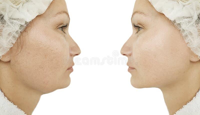 举在更正皮下脂肪切除术治疗前后的妇女双下巴 免版税库存图片