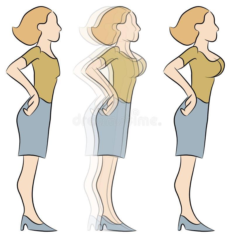 乳房扩大转换 向量例证