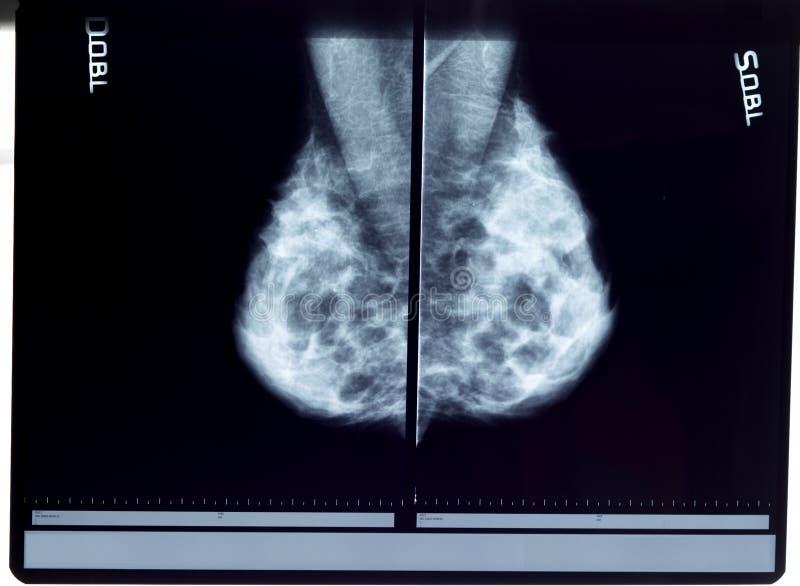 乳房X线照片光芒x 库存照片