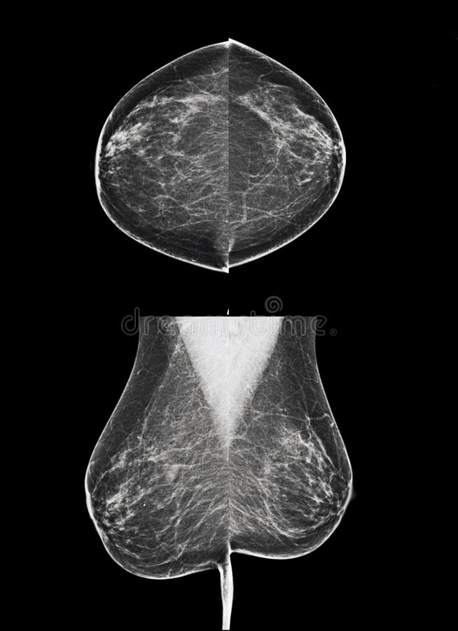 乳腺癌的-乳房X线照片审查 图库摄影
