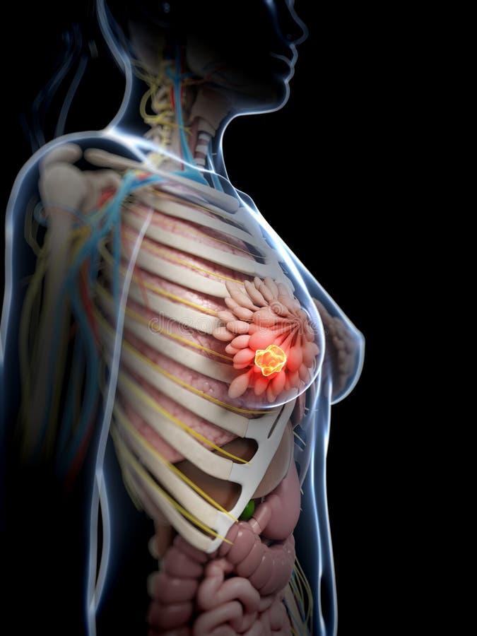 乳腺癌 皇族释放例证