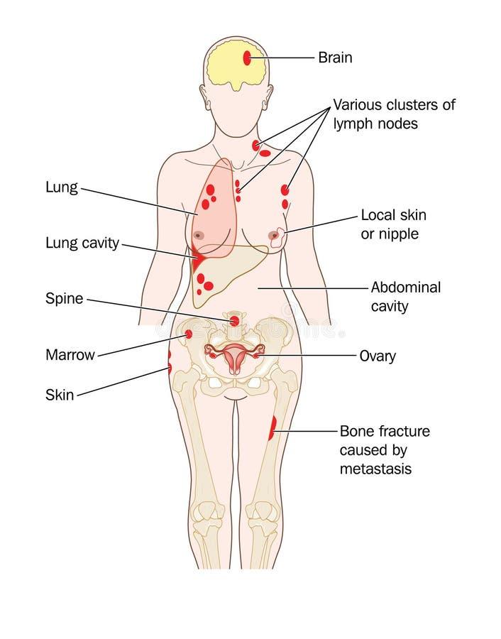 乳腺癌secondaries 皇族释放例证
