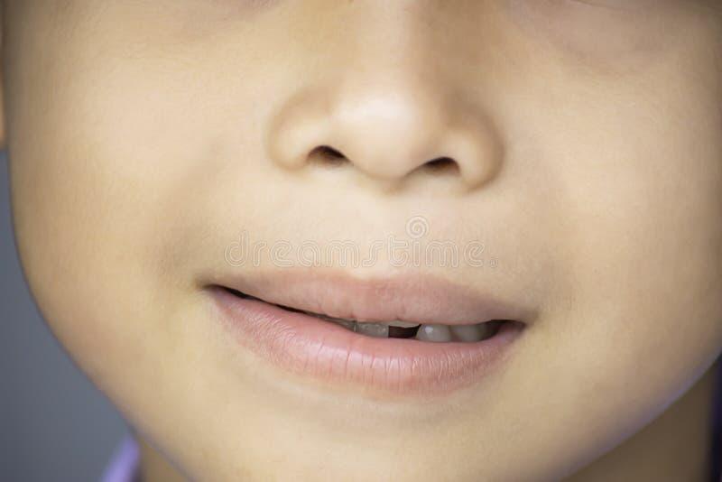 乳齿在嘴被投下 免版税库存照片