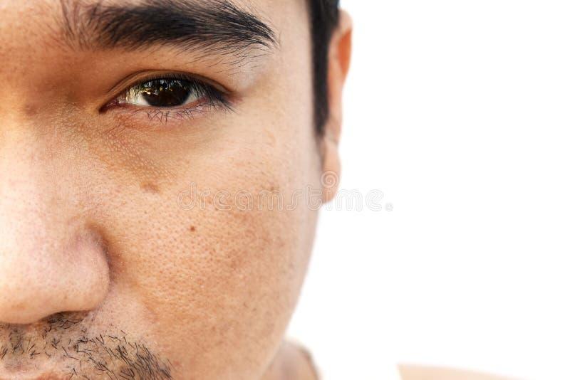 亚洲人面孔皮肤以后没有得到睡眠闪光,并且长期不保重 库存图片