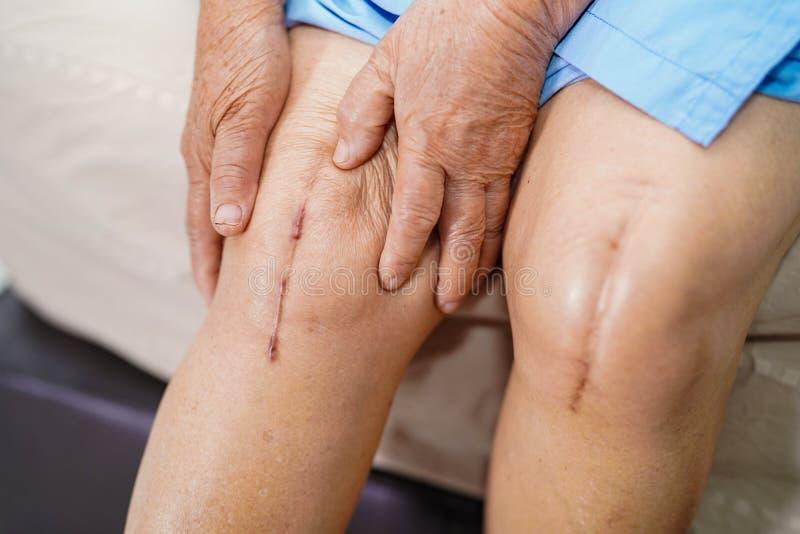 亚裔资深或年长老妇人妇女患者显示她的伤痕外科总膝盖关节替换缝合创伤手术 库存图片