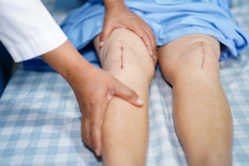 亚裔资深或年长老妇人妇女患者显示她的伤痕外科总膝盖关节替换缝合创伤手术 库存照片