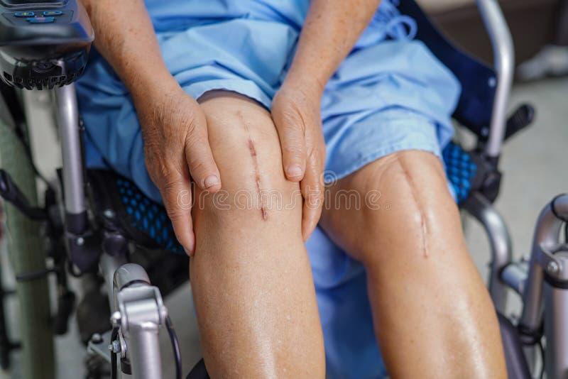 亚裔资深或年长老妇人妇女患者显示她的伤痕外科总膝盖关节替换缝合创伤手术arthropla 库存照片
