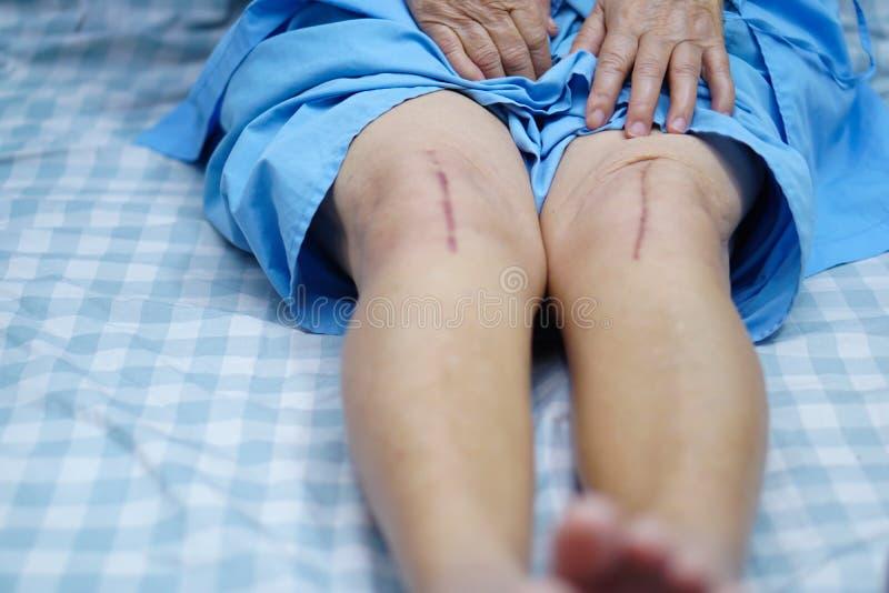 亚裔资深耐心夫人的老妇人显示她伤痕外科总膝盖关节替换 免版税图库摄影