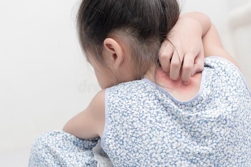 亚洲女孩抓痕痒用手 库存图片