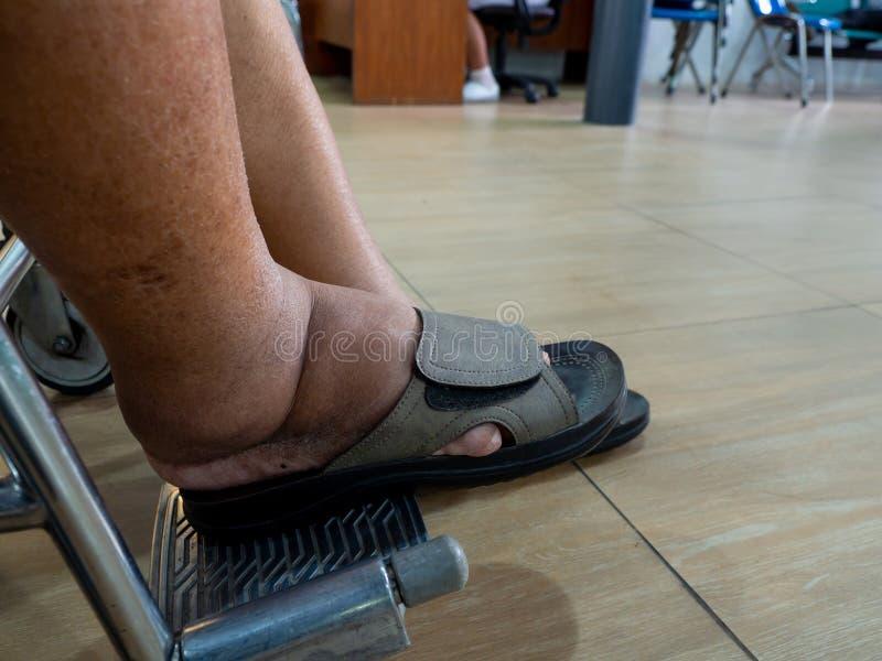 人以与胀大脚的糖尿病和肾病 不能穿鞋子 他是在一个轮椅在争斗的t医院 免版税图库摄影