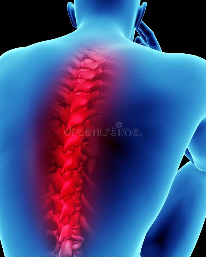 人力背部疼痛 皇族释放例证