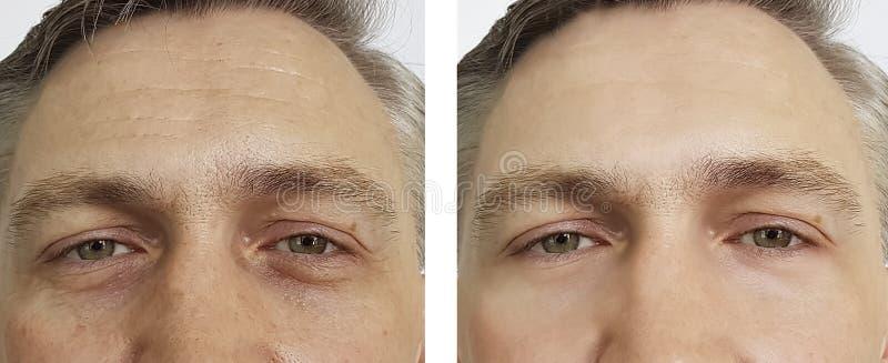 人在做法前后的眼睛皱痕 免版税库存照片