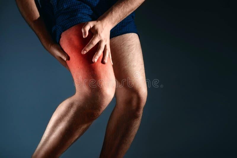 人坚持膝盖,在膝盖的痛苦 库存图片
